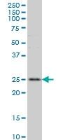 RAB7L1 Antibody | 2B8 gallery image 1