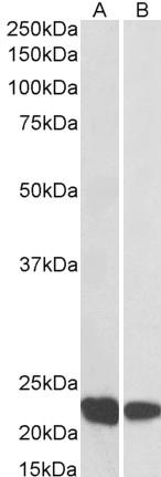 RAC2 Antibody gallery image 1