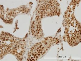 RAD18 Antibody | 3H7 gallery image 3