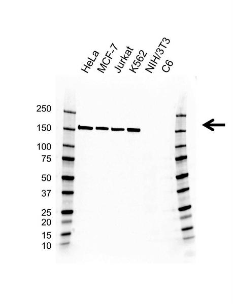 RAD50 Antibody (PrecisionAb<sup>TM</sup> Antibody) | AB01/1A7 gallery image 1