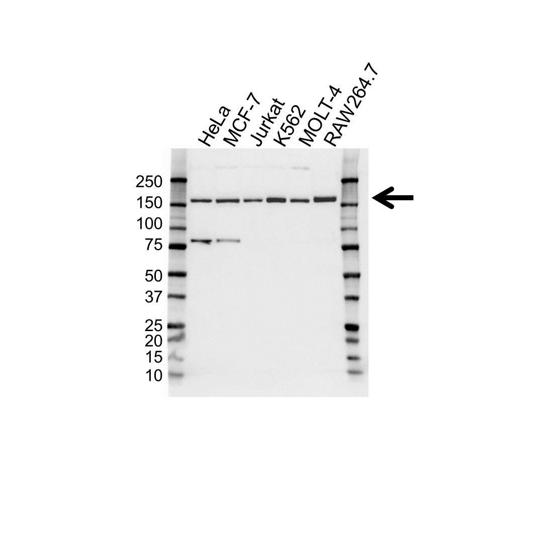 RAD50 Antibody (PrecisionAb<sup>TM</sup> Antibody) gallery image 1