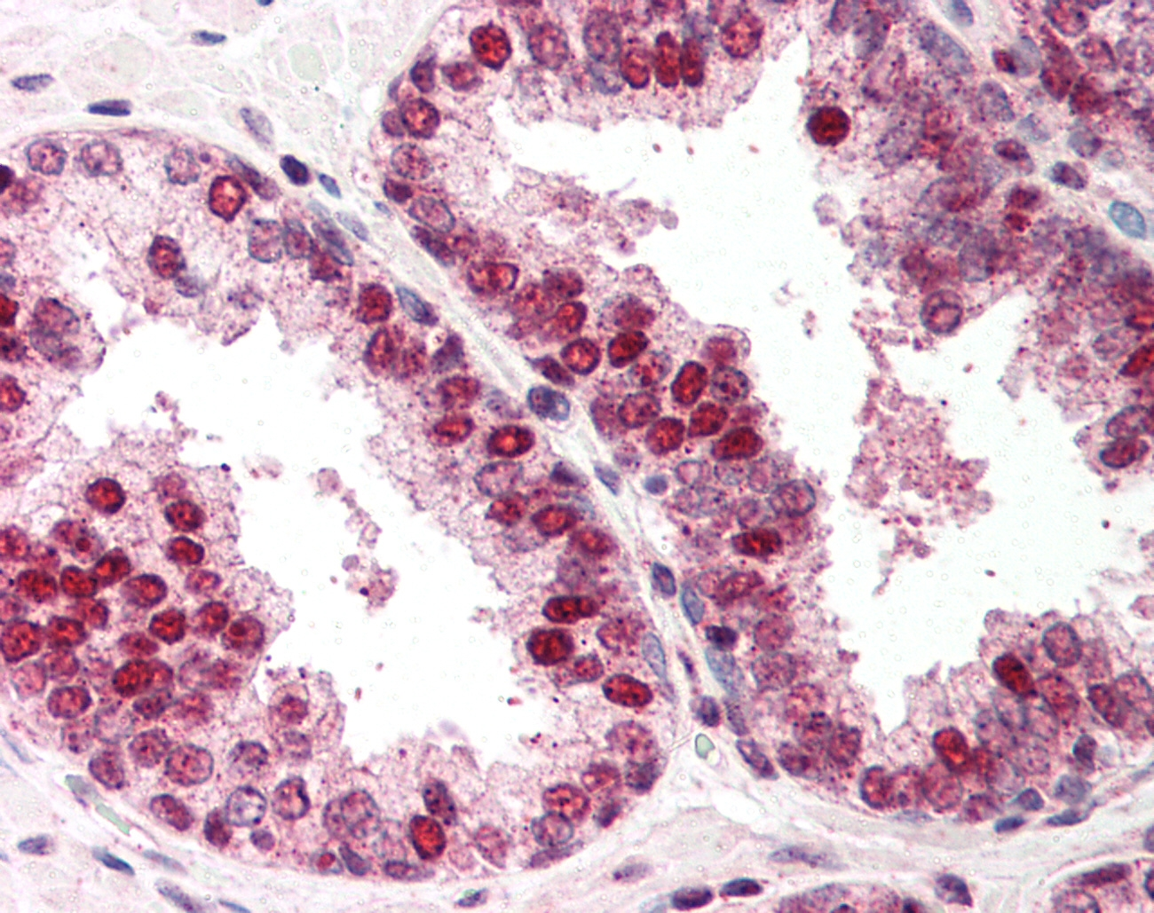 RAD52 Antibody gallery image 1