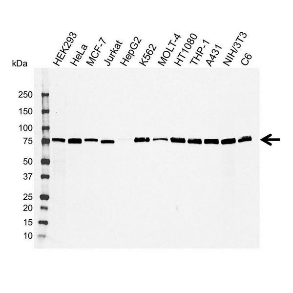 Radixin Antibody (PrecisionAb<sup>TM</sup> Antibody) gallery image 1