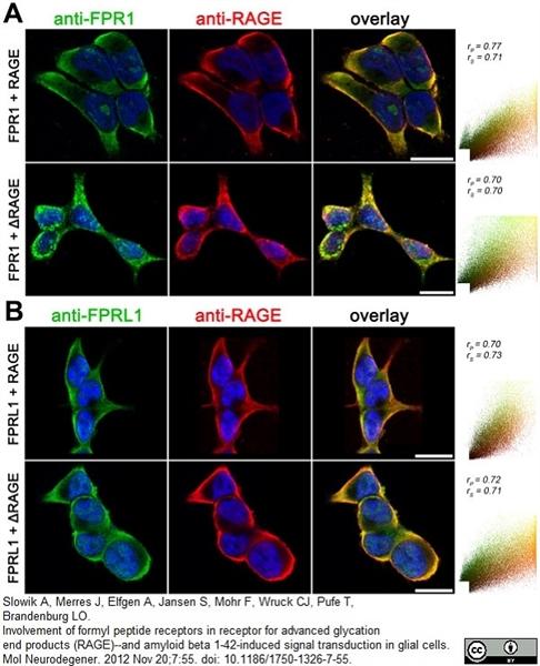 RAGE Antibody gallery image 4