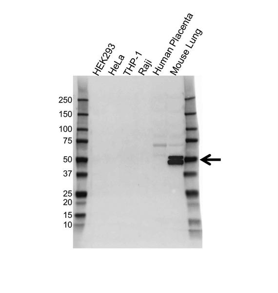 RAGE Antibody (PrecisionAb<sup>TM</sup> Antibody) gallery image 1
