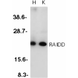 RAIDD Antibody gallery image 1