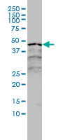 RAR Alpha Antibody   2C9-1F8 gallery image 1