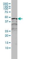 RAR Alpha Antibody | 2C9-1F8 gallery image 1