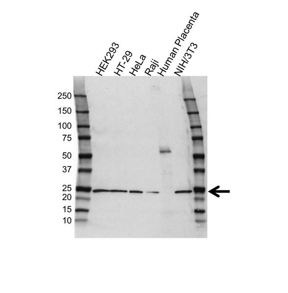 RCAN1 Antibody (PrecisionAb<sup>TM</sup> Antibody) gallery image 1