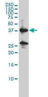 Renin Antibody | 2H2 gallery image 1