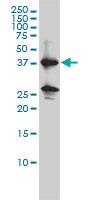 Renin Antibody   2H2 gallery image 1