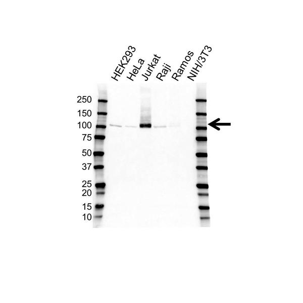 Retinoblastoma Gene Protein Antibody (PrecisionAb<sup>TM</sup> Antibody) gallery image 1