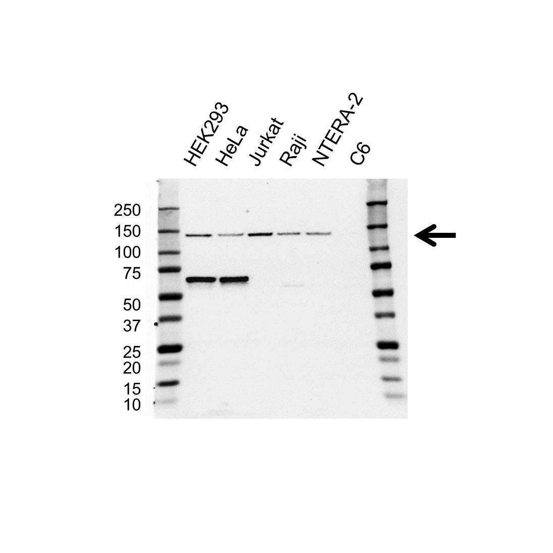 RFX1 Antibody (PrecisionAb<sup>TM</sup> Antibody) gallery image 1