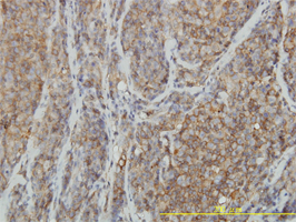 RHOA Antibody | 1B12 gallery image 2