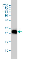 RHOA Antibody | 1B12 gallery image 1