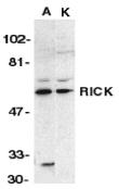 RIP2 Antibody gallery image 1