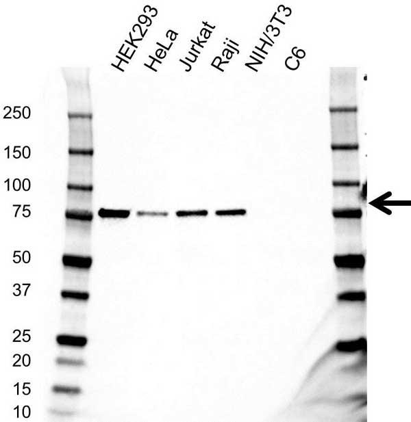 RIPK1 Antibody (PrecisionAb<sup>TM</sup> Antibody) gallery image 1