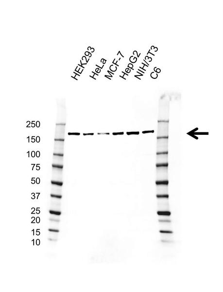 ROCK1 Antibody (PrecisionAb<sup>TM</sup> Antibody) | AB01/1F3 gallery image 1