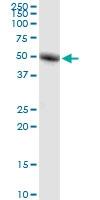 Ror-Gamma Antibody   1G7 gallery image 1