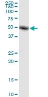 Ror-Gamma Antibody | 1G7 gallery image 1