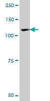 ROR1 Antibody | 2F8 gallery image 1