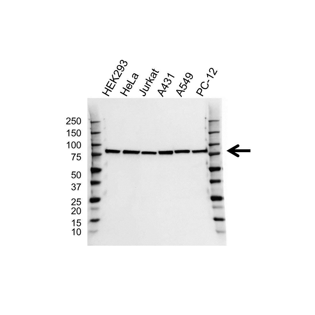 RPS6KA3 Antibody (PrecisionAb<sup>TM</sup> Antibody) gallery image 1
