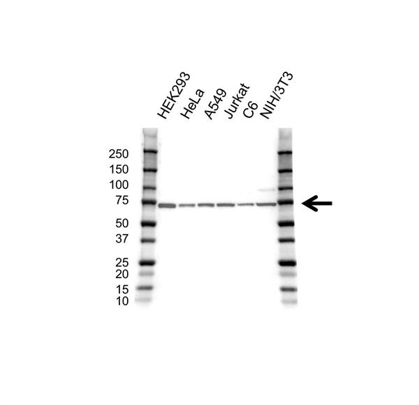 RPS6KB2 Antibody (PrecisionAb<sup>TM</sup> Antibody) gallery image 1