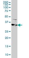 RRM2 Antibody | 1E1 gallery image 1