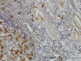 RRM2 Antibody | 1E1 gallery image 3
