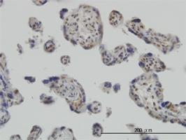 RUNX2 Antibody | 4D5 gallery image 2