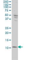 S100A4 Antibody | 1F12-1G7 gallery image 2