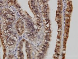S100A6 Antibody | 6B5 gallery image 1