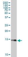 S100A9 Antibody | 4G9 gallery image 1