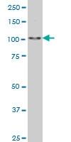 SALL4 Antibody | 6E3 gallery image 2