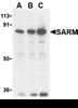 SARM1 Antibody thumbnail image 1
