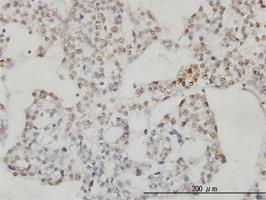 SESN2 Antibody | 3B8 gallery image 1