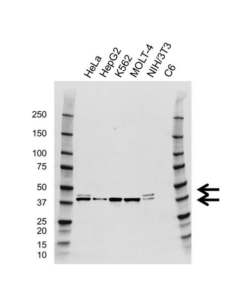 SET Antibody (PrecisionAb<sup>TM</sup> Antibody) | AB02/4F6 gallery image 1