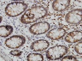 SGK3 Antibody | 2A7 gallery image 1