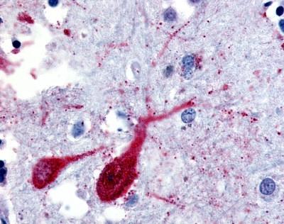 SLC5A9 Antibody gallery image 1