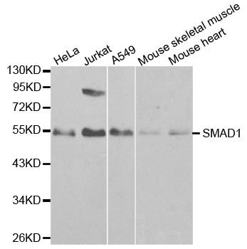 SMAD1 Antibody gallery image 1