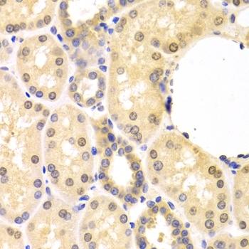 SMAD1 Antibody gallery image 4