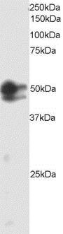 SMAD2 Antibody gallery image 1