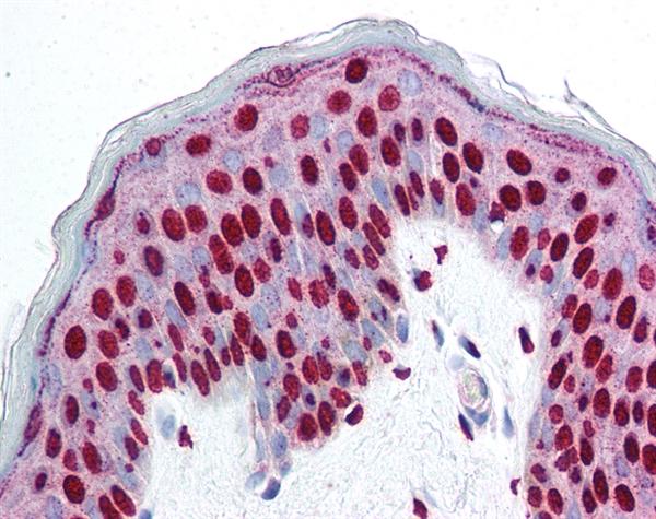 SMAD3 Antibody gallery image 1