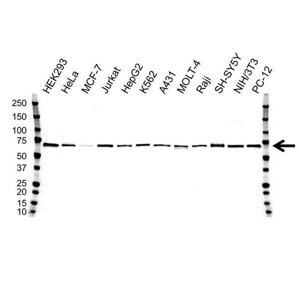 SMAD4 Antibody (PrecisionAb<sup>TM</sup> Antibody) | 1B6 gallery image 1