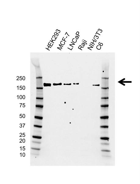 SMARCC2 Antibody (PrecisionAb<sup>TM</sup> Antibody)   AB02/2E2 gallery image 1