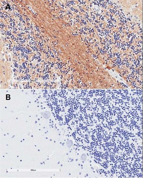 SNAP-25 Antibody gallery image 2