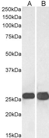 SNAP-25 Antibody gallery image 1