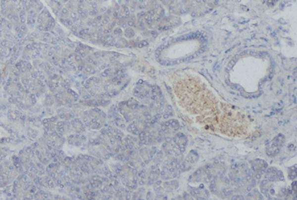 Somatostatin Receptor 5 Antibody | sstr5 gallery image 1