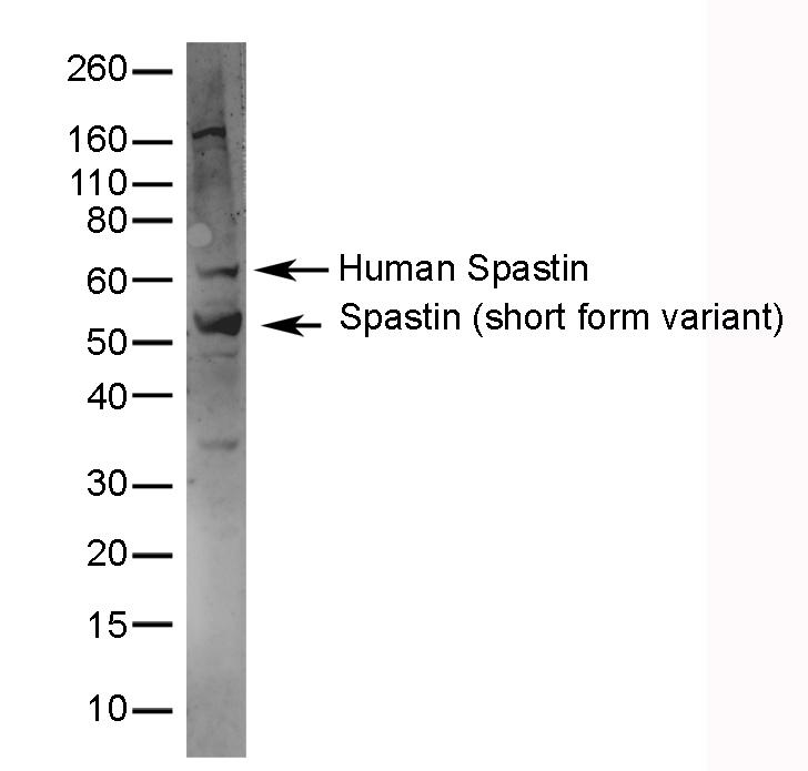 Spastin Antibody gallery image 1