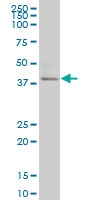 SPHK1 Antibody | 1D6 gallery image 1